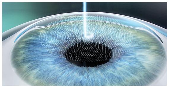 Oeil opéré avec le laser Femto Lasik