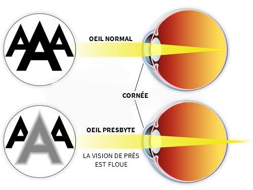 comparaison oeil normal et oeil atteint de presbytie